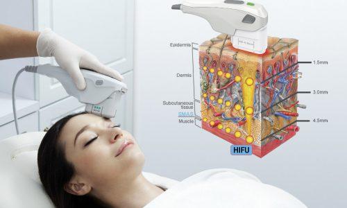 RT Aesthetics HIFU - High Intensity Focused Ultrasound
