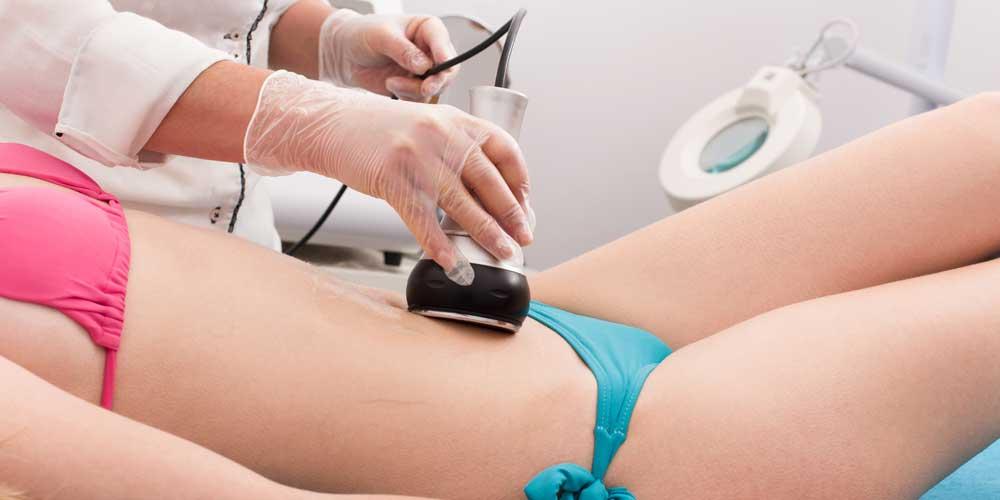cavitation treatment newcastle