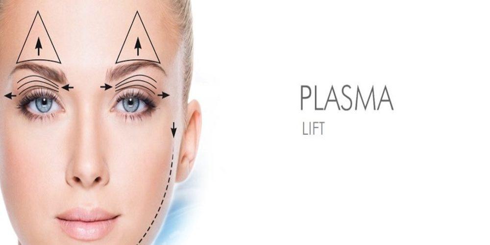 plasma RT Aesthetics - Newcastle Plasma Lift