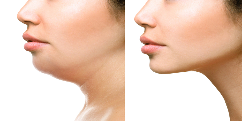 Double Chin Reduction Treatment | RT Aesthetics | Newcaste | UK