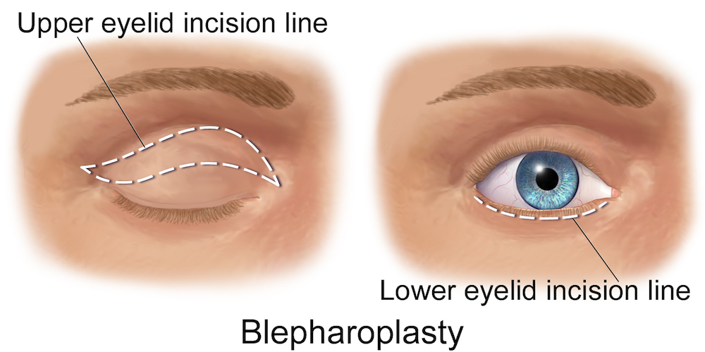 Blepharoplasty-EyeLift-EyeSurgery- RT Aesthetics Newcastle