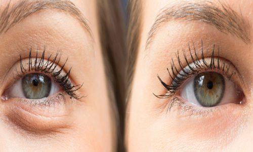 Eye Bag and Hooded Eyes Treatments - RT Aesthetics - Newcastle