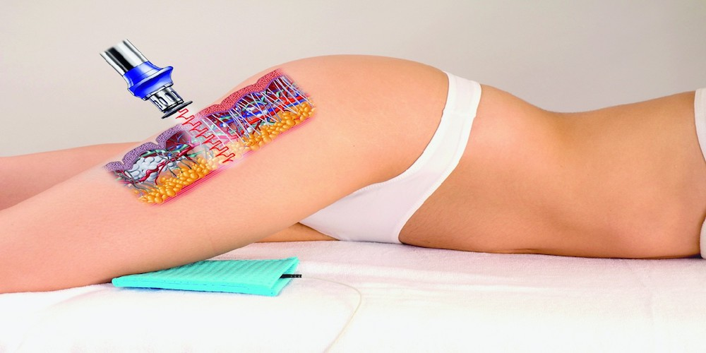 Shockwave Thearpy for Cellulite Treatment