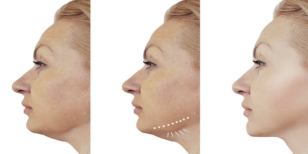 jowls treatments