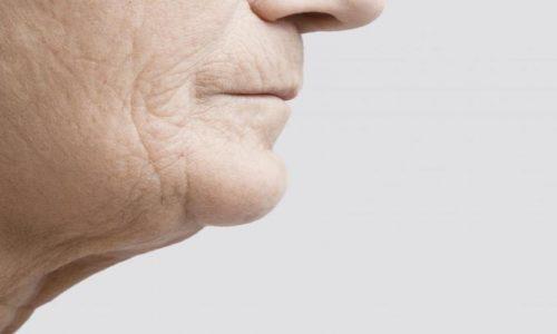 Jowls Treatment - 5 effective ways to rid jowls