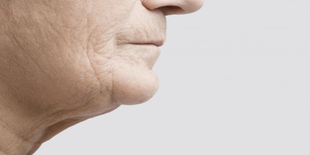 Jowls Treatment - 5 effective ways to rid jowls