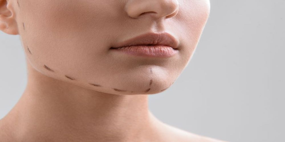 Chin Liposuction Newcastle
