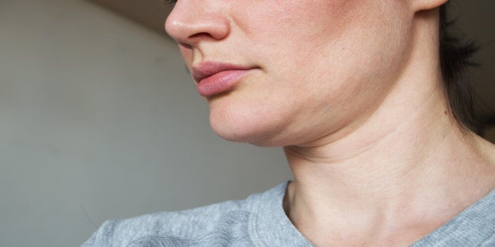 double chin exercises and treatments