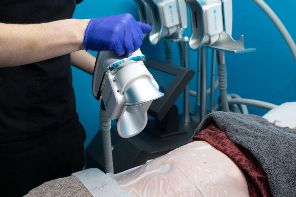 Fat Freezing Treatment Procedure